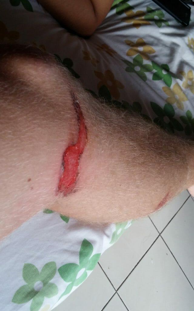blessure bali 2