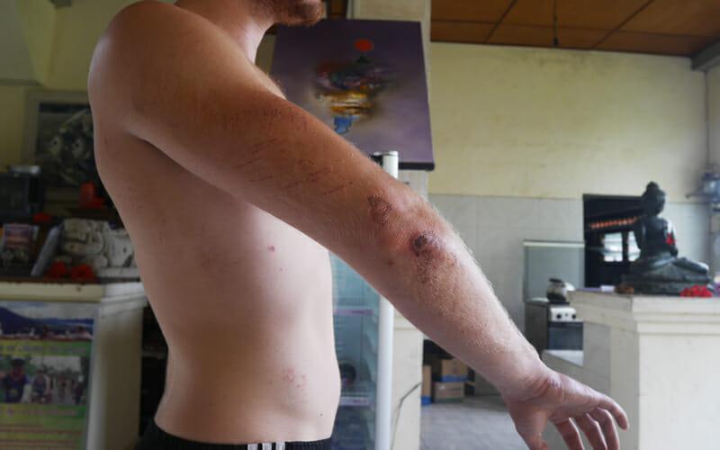 blessure bali 1